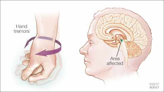 a medical illustration of the hand tremor associated with Parkinson's disease and the affected area of the brain
