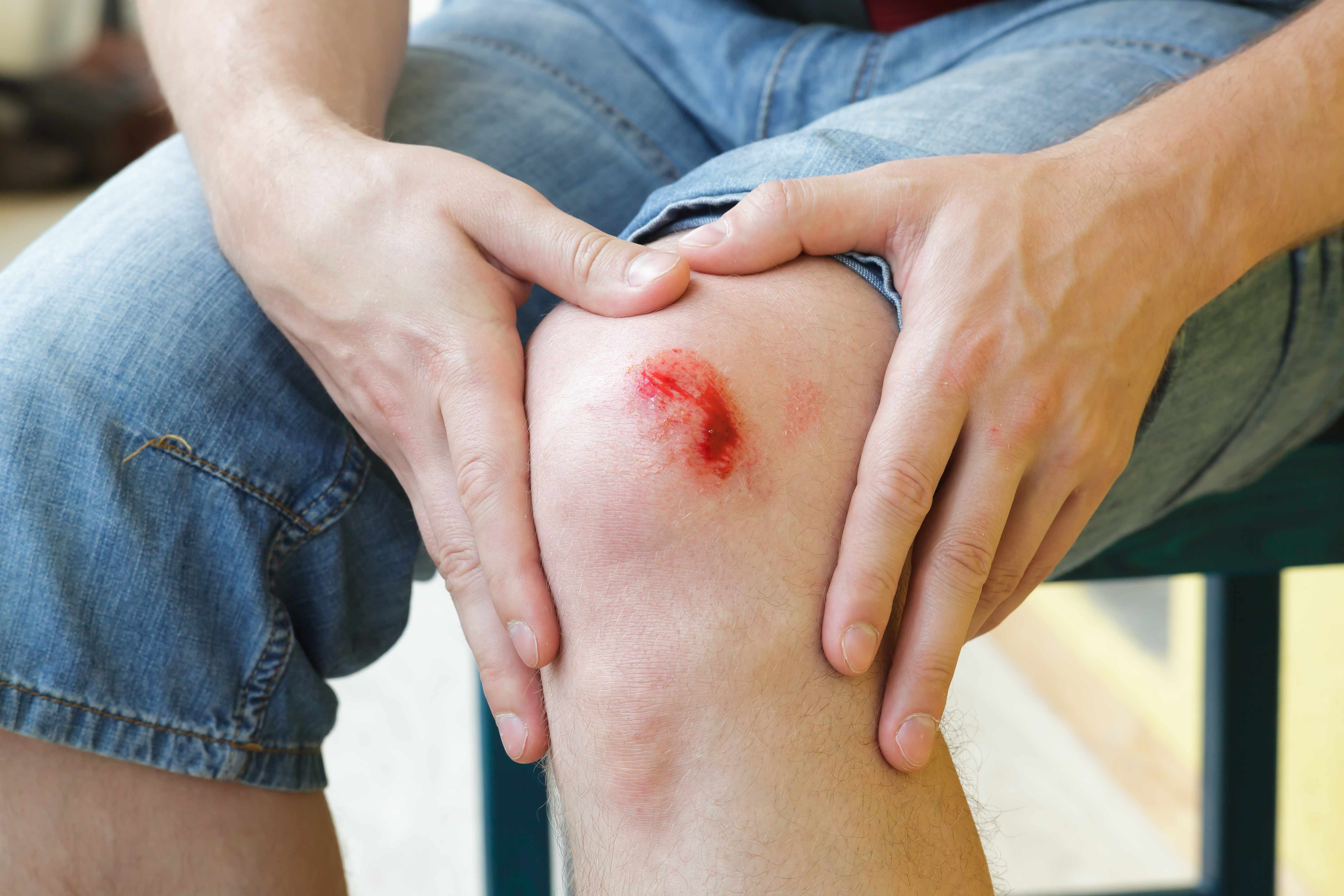 a person holding his or her knee that has been scraped and is bleeding