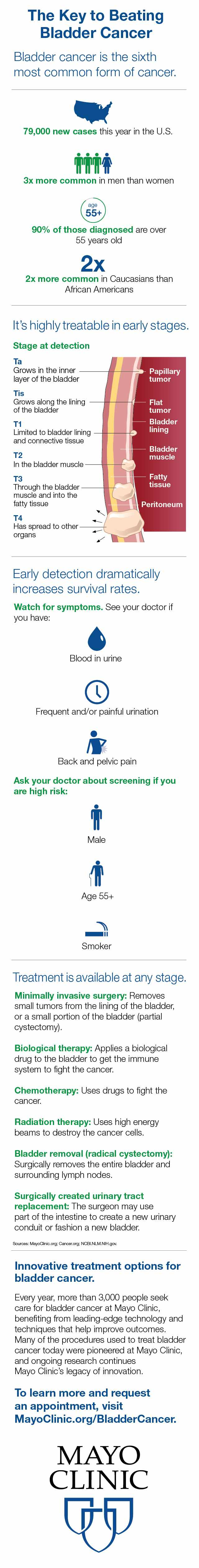 Infographic for the Key to Beating Bladder Cancer