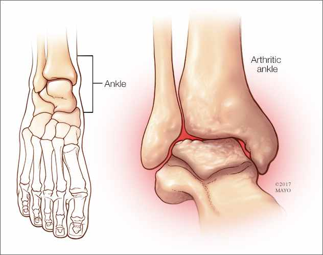 a medical illustration of ankle arthritis