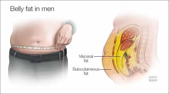a medical illustration of belly fat in men
