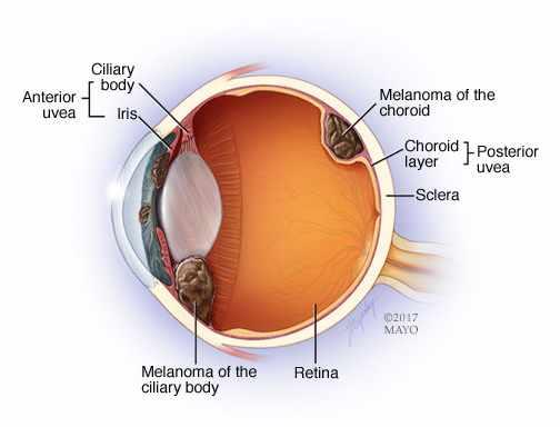 illustration of eye melanoma