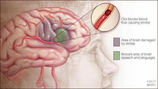 Ilustración médica de un accidente cerebrovascular en el área cerebral de Broca (lenguaje y habla)