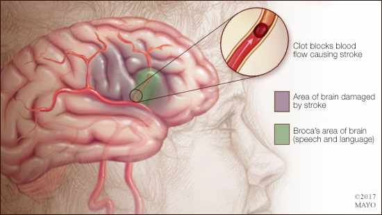a medical illustration of a stroke in Broca's area of the brain (speech and language)