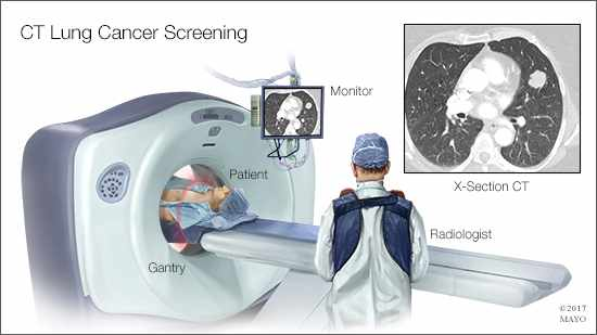 a medical illustration of a CT lung cancer screening
