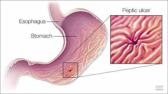 Ilustración médica de un esófago, un estómago y una úlcera péptica