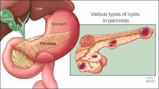 Ilustración médica de varios tipos de quistes pancreáticos