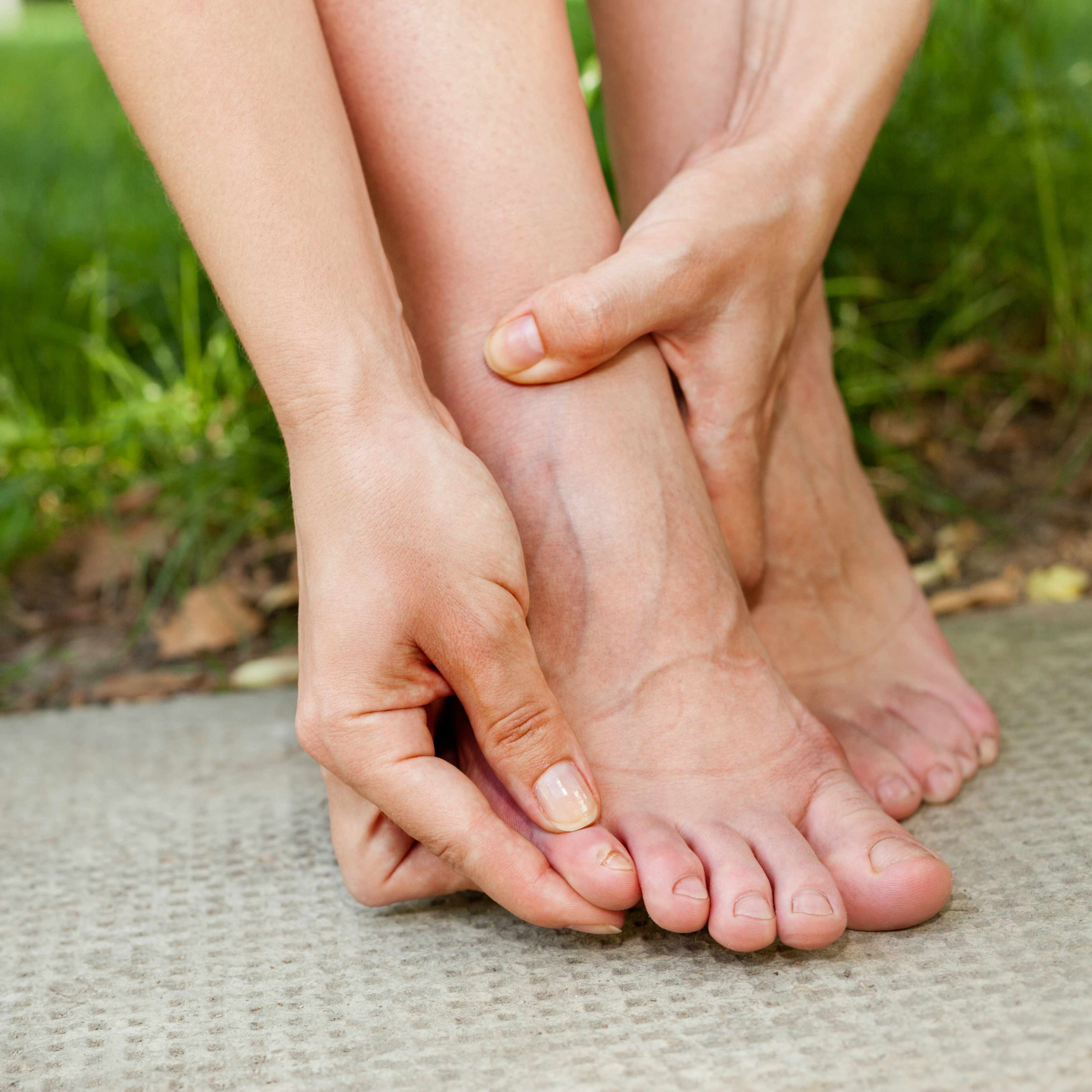 a woman with foot pain, perhaps with corns and calluses, rubbing her toes