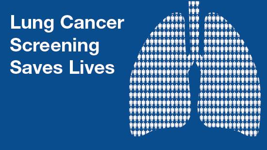 blue background infographic lung cancer screening