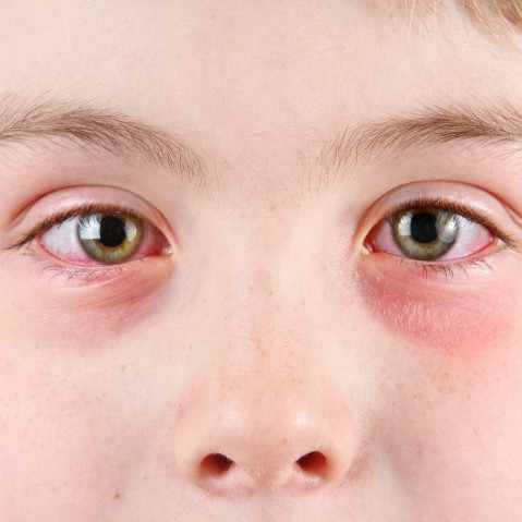 little boy with conjunctivitis or pink eye