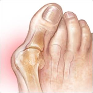 a medical illustration of a bunion