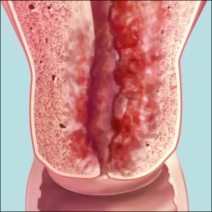 a medical illustration of endometrial cancer