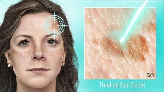 Ilustración médica de las manchas por el sol en la cara de una mujer