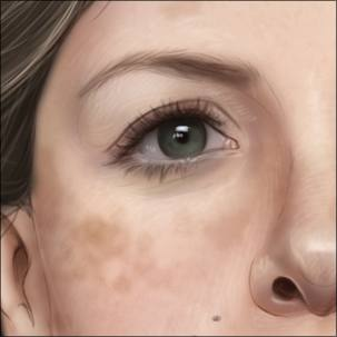 a medical illustration of sunspots on a woman's face