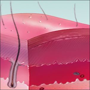 a medical illustration of the layers of skin with a second degree burn