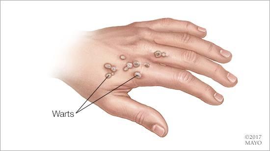 Ilustración médica de verrugas en la mano