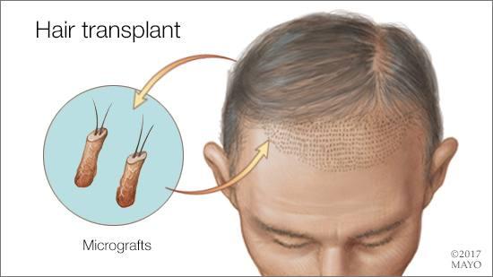 Ilustración médica del trasplante capilar con microinjertos