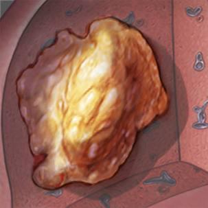 a medical illustration of liver cancer