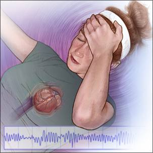 a medical illustration of long QT syndrome