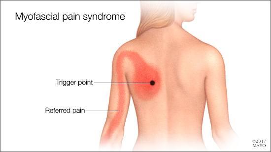 Ilustración médica de los posibles puntos dolorosos en la fibromialgia