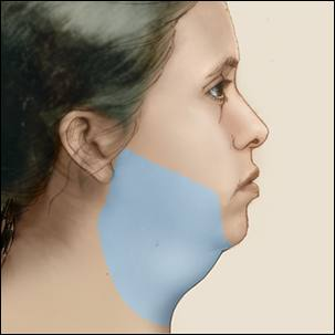 a medical illustration of the area of the lower face, chin and neck that could be treated with liposuction