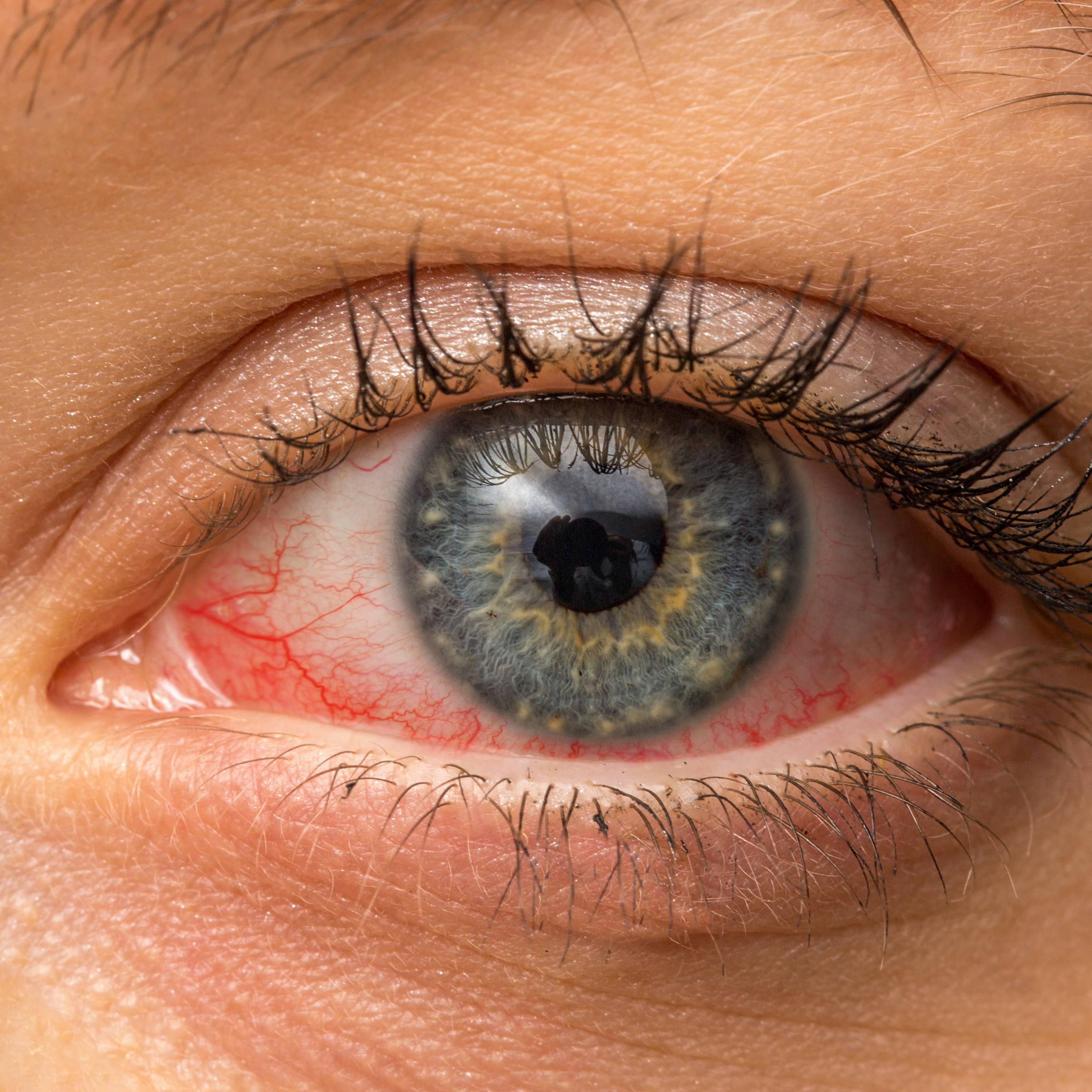 a person with red, sore and itchy eyes, maybe pink eye, conjunctivitis