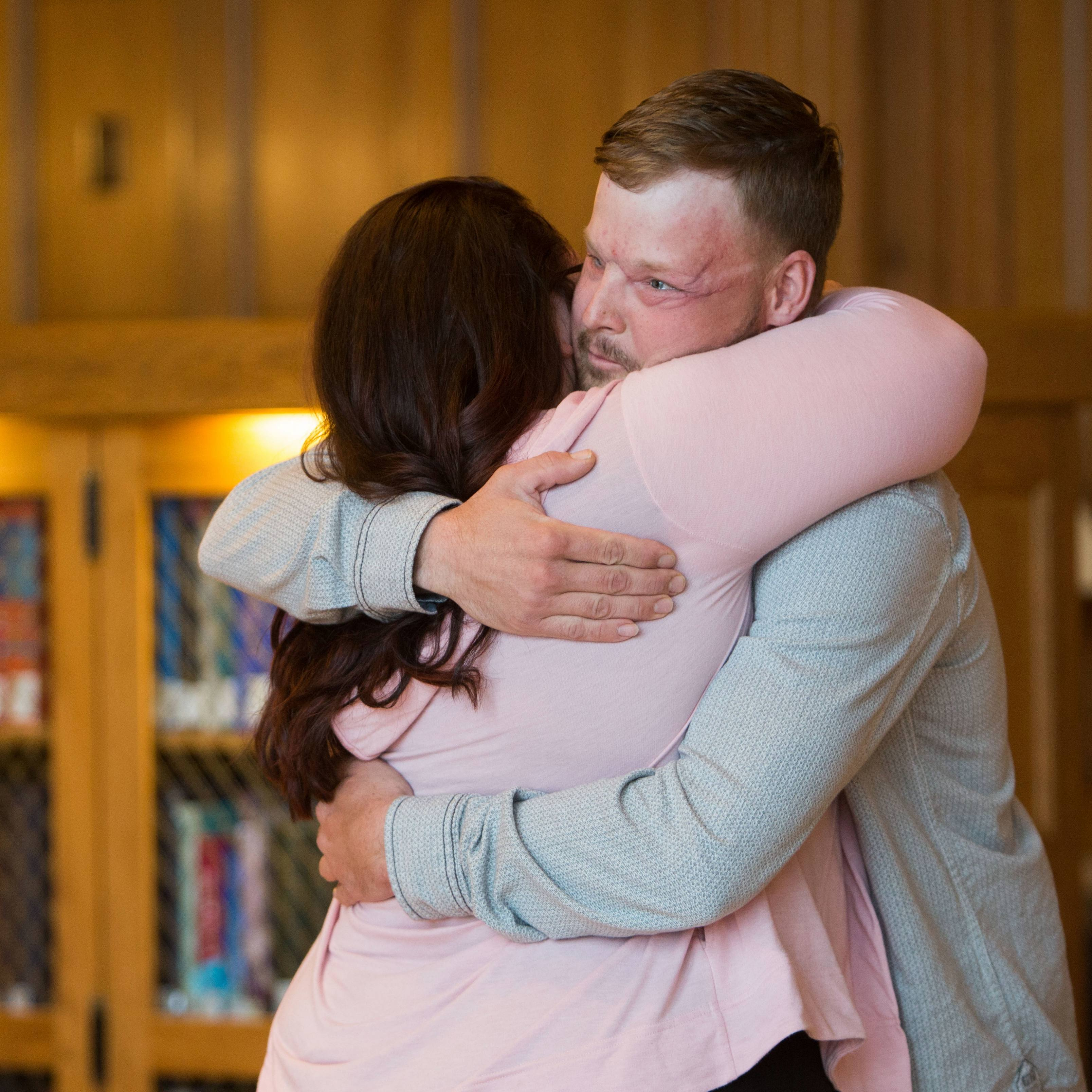 face transplant donor's wife meets Andy the recipient