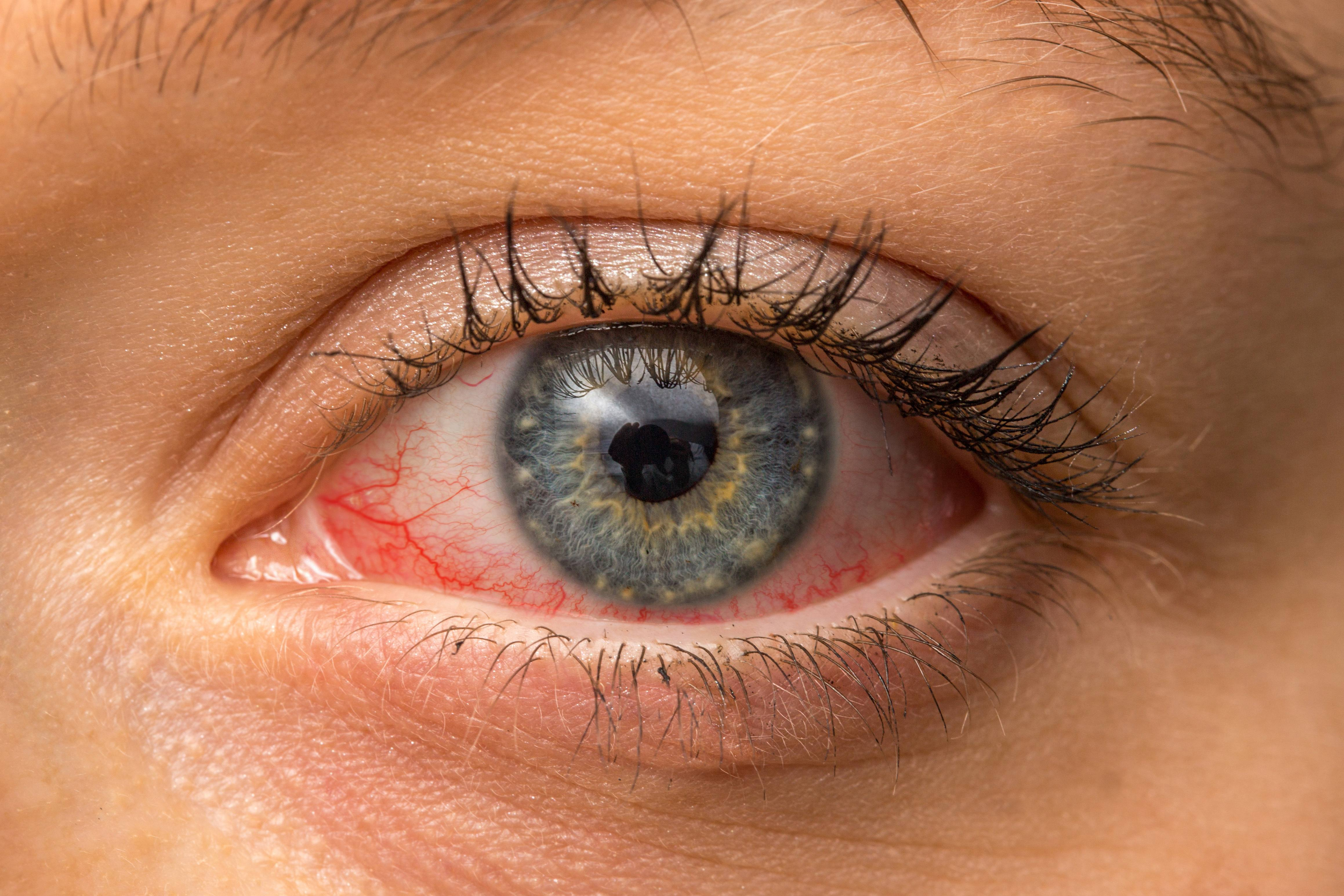 a person with red, sore and itchy eyes, maybe pick eye, conjunctivitis