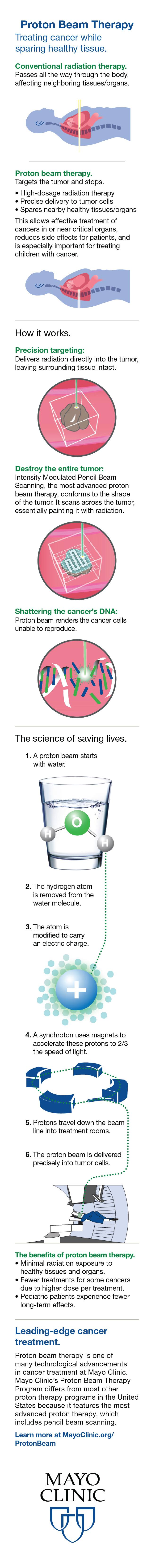 Infographic for treating cancer with proton beam therapy