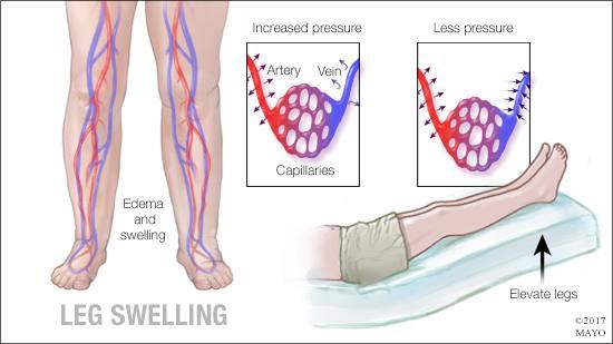 Gráfico médico de edema e hinchazón de la pierna