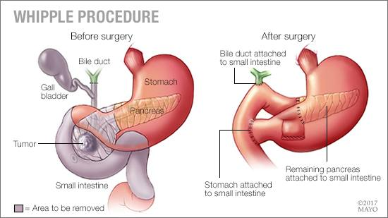 a medical illustration of a Whipple procedure, or pancreaticoduodenectomy
