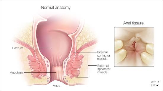 a medical illustration of normal rectal and anal anatomy, and an anal fissure