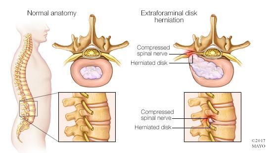 Ilustración médica de una hernia de disco