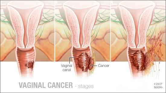 a medical illustration of the stages of vaginal cancer