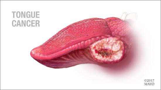 a medical illustration of tongue cancer