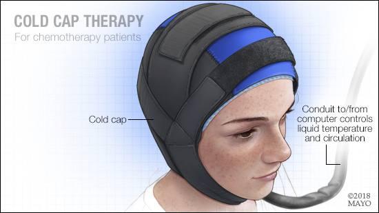 Ilustración médica de la terapia con gorro hipotérmico para pacientes de quimioterapia
