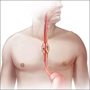 a medical illustration of esophageal cancer