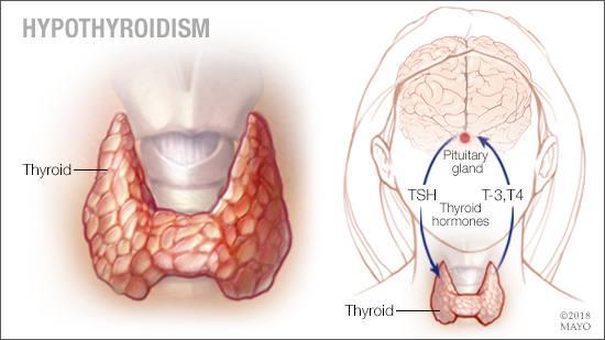 Ilustración médica del hipotiroidismo