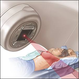 a medical illustration of radiation therapy