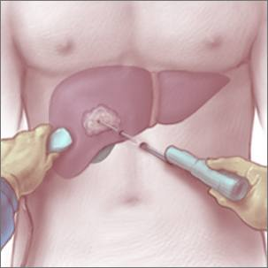a medical illustration of radiofrequency ablation
