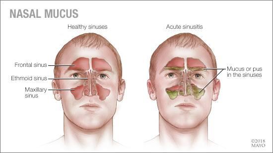 Ilustración médica de los senos paranasales y de la mucosidad nasal
