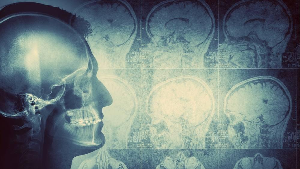 Imagen conceptual de un hombre visto de perfil que muestra el cerebro y la actividad cerebral