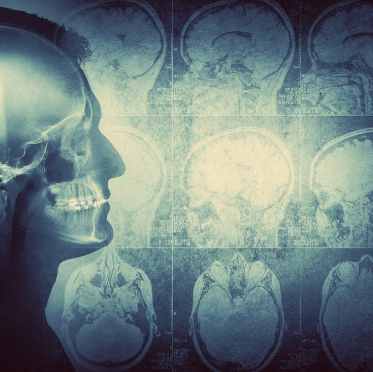 Conceptual image of a man from side profile showing brain and brain activity