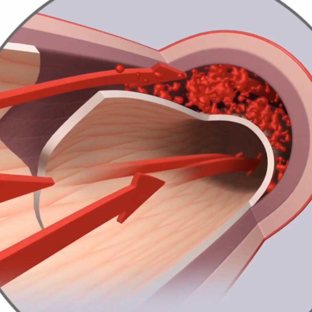 An illustration of spontaneous coronary artery dissection SCAD