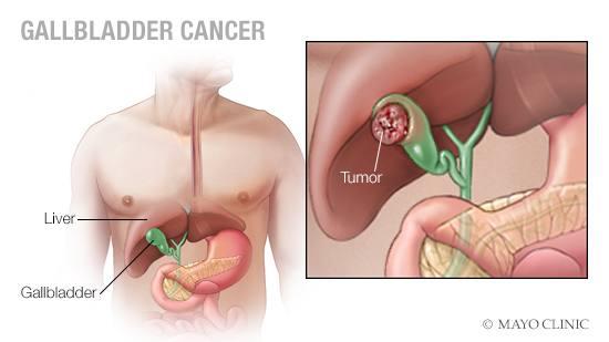 a medical illustration of gallbladder cancer