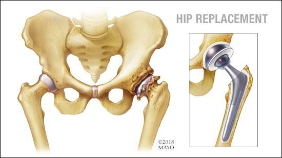 Ilustración médica de un reemplazo de cadera