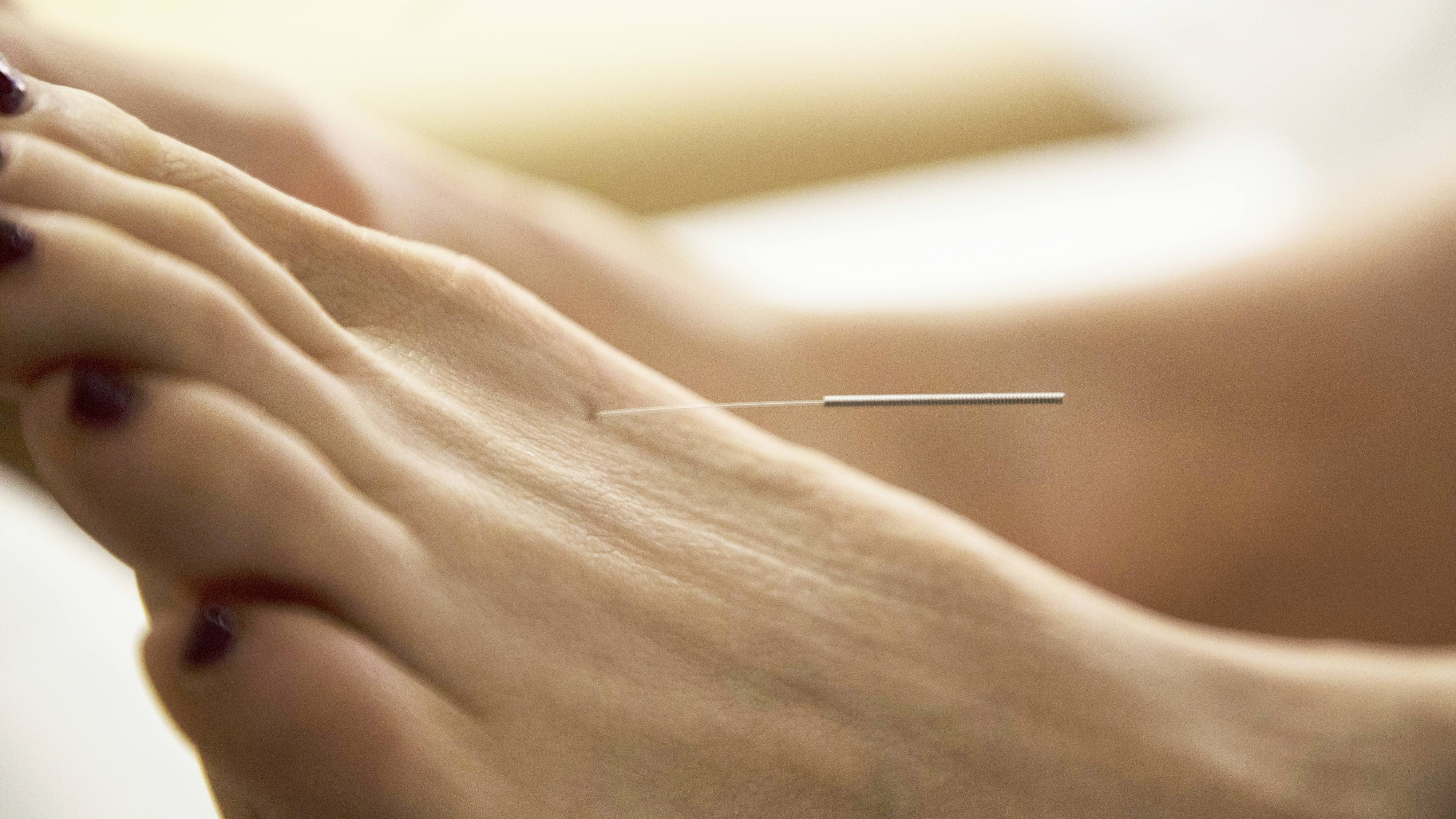 a women's foot with a needle in it during an acupuncture therapy session
