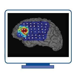 infographic design for Epilepsy Neuroimaging