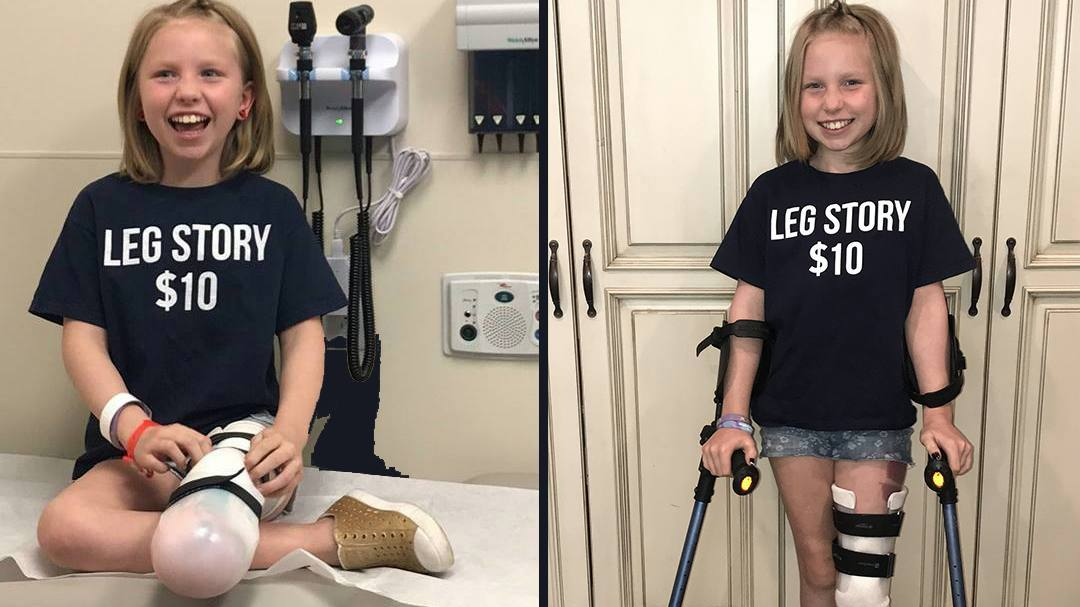 cancer patient for In the Loop story, Abri Bentley, on crutches and smiling