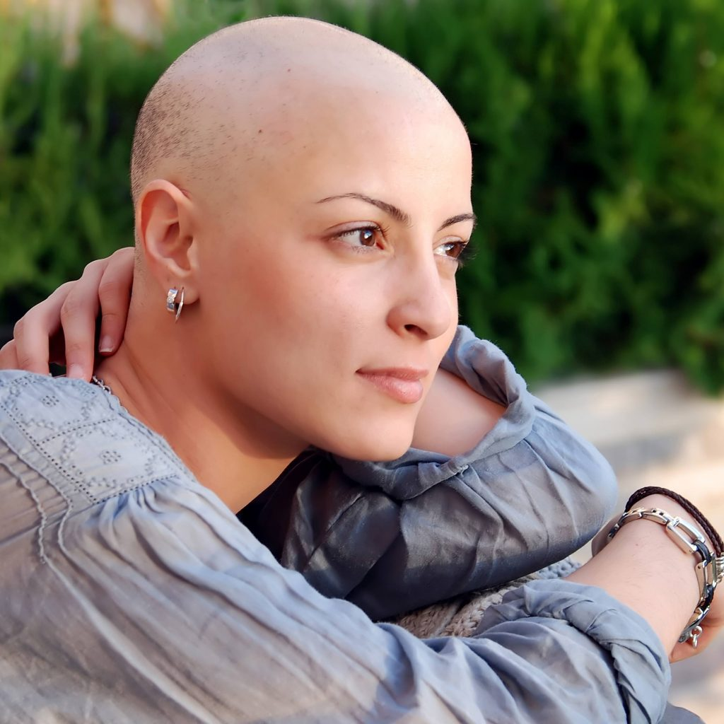 a close-up of a young woman who has lost her hair due to cancer treatment
